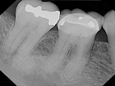 Cone Beam Ct 2 D Imaging Is No Comparison Dentalcompare Com