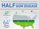New Data From The CDC Showing Close To Half Of U.S. Adults Have Periodontitis Should Provide A Wake-Up Call For Public Health Officials And All Americans