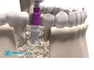 Product Overview: Trabecular Metal Dental Implant System from Zimmer Dental