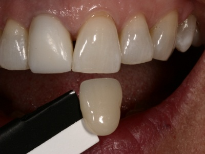 Successfully Communicating Shades in the Anterior Esthetic Zone