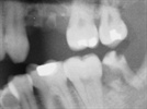 The American Dental Association Issues Updated Recommendations for Dental X-rays