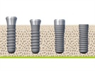 Close to 100% Success Rate for Straumann SLA Dental Implants in Large Scale 10-Year Study