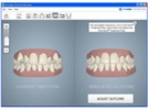 New Dental Product: Invisalign Outcome Simulator