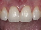 A Simple Approach to Composite Diastema Cases