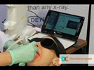 New Product Highlight Video: The Canary System from Quantum Dental Technologies