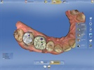 New CEREC Dental CAD/CAM Innovations Show the Digital Dental Future has Arrived