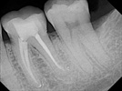 What Properties of a Dental Adhesive System Are Most Important?