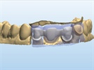 Dental Materials Demystified: All-Ceramic Options for Multi-Unit Dental Bridges