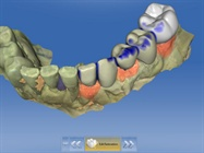Case Study: Using Chairside CAD/CAM to Create an Implant-Supported Temporary Bridge
