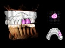 Enhanced Dental Product: Invivo 5.3 3D Imaging Software from Gendex