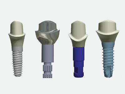Custom Straumann Abutments Now Available to 3Shape Users