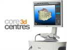 Core3dcentres Custom Abutments Available from iTero Scans