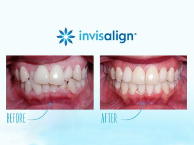 Invisalign G5 for Deep Bite Officially Released