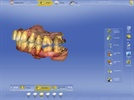 Enhanced Dental Product: CEREC 4.3 Software from Sirona
