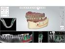 Enhanced Dental Product: 3Shape Implant Studio Adds BioHorizons Implant Library