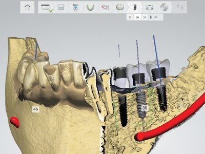 Enhanced Dental Product: Implant Studio Software from 3Shape Available in the U.S., Adds Nobel Biocare Implants