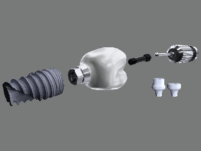 Nobel Biocare Launches Cement-Free Posterior Dental Implant Solution