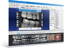 Dentrix G6 Dental Practice Management Software