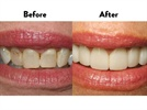 A Simple Cosmetic Dentistry Alternative
