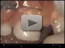 Video: AMD LASERS - Frenectomy on 4 years old, by Dr. Glenn van As