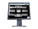 A Dental Hygienist's Guide to Digital Radiography