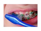 Orthodontic Dental Hygiene Care Plan