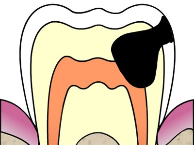 CAMBRA: The New Model for Managing Caries