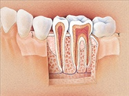 Periodontal Diagnosis and Treatment: Lasers, Chemotherapeutics, and Guided Tissue Regeneration
