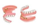 Mini Dental Implants for Denture Stabilization: The Standard of Care