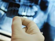 Are Dental X-Rays Risky Business?