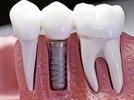 Implant Anchorage in Orthodontics