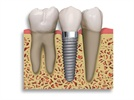 5 Key Technologies Driving Dental Implant Success