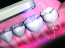 Digital Impressions = More Predictable Dentistry