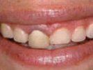 Waterlase MD Case Study: Gingival Recontouring for Smile Line Enhancement