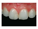 "Case Study: Repairing Centrals with Shofu Beautifil ""Giomer"" Restorative"