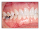 Restorative Case Study: Temrex Bite Relator for Accurate Crown & Bridge Impressions