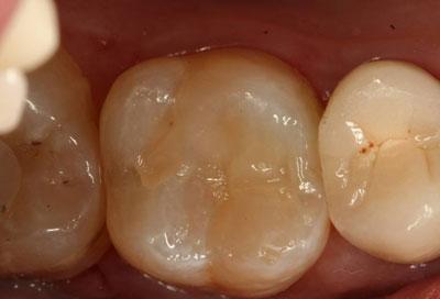 Image Gallery Minor Cavities