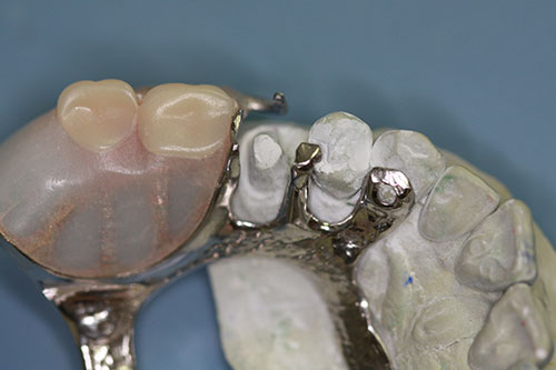 Model and Partial Denture