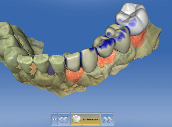 Case Study Using Chairside Cad Cam To Create An Implant