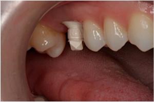 Implant Practice US - October 2013 - Vol 6 No 5 by MedMark ...