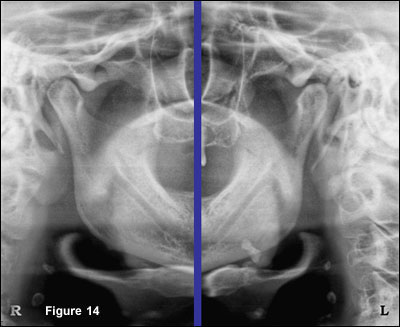 a systematic approach to evaluating the non-tooth bearing areas of the panoramic radiograph
