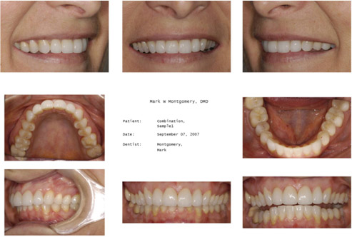 Narrow Arches With Recession And Abfraction Lesions