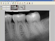 Dental Digital Radiography / X-ray
