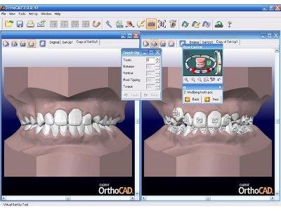 Orthocad Iq Orthodontic Digital Treament Planning System