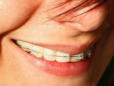 Checking Up on Online Orthodontic Evaluations