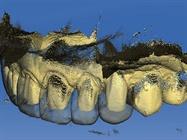 Dental CAD/CAM in the Esthetic Zone – A Digital Veneer Case Study