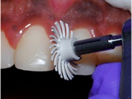 Simplified Hypoplastic Enamel Restoration with a Dental Nanocomposite