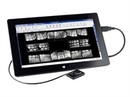 SuniRay 2 Digital Intraoral Sensor