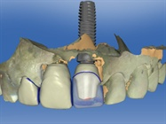 Case Study: Chairside CAD/CAM Implant Abutments in the Anterior Region