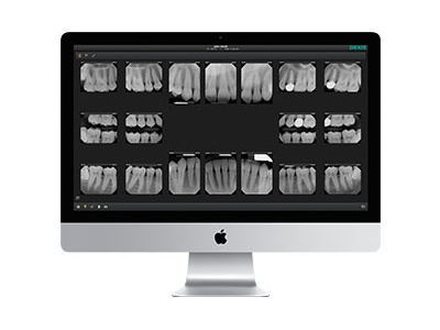 New Dental Product: DEXIS Mac Imaging Software Now Available from DEXIS